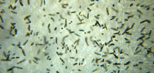 what is spirulina - microscope observation of Live Spirulina Algae Seed Culture